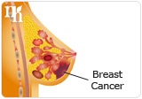 HRT increase the risk of breast cancer.